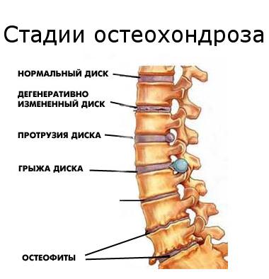 Шейный остеохондроз симптомы лечение и отзывы