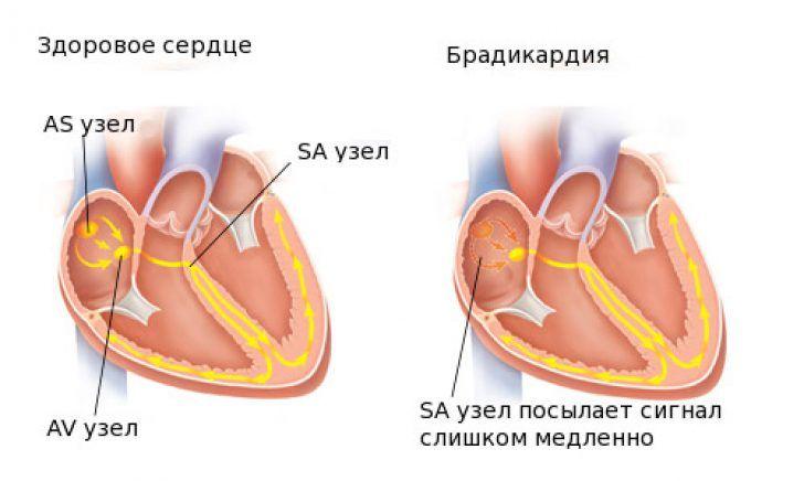 брадикардия сердца