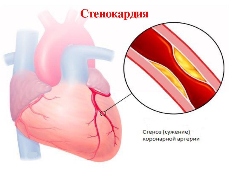 Что значит сердечный приступ