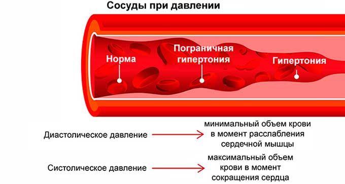 сосуды гипертония